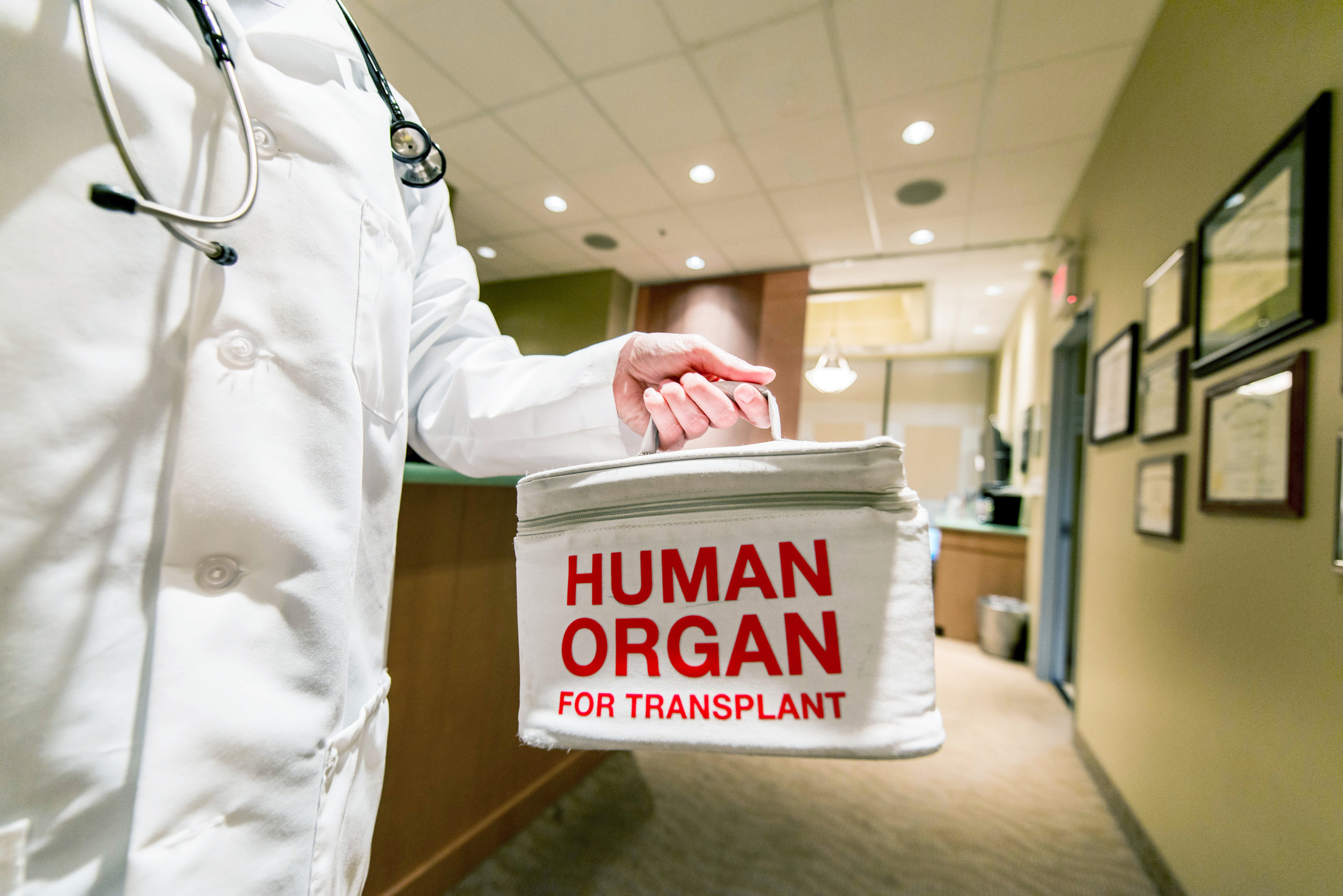 the need for organ donors how to become one and the benefits of being a donor Frequently asked questions one organ donor can save up to people of any age wishing to become organ and tissue donors should inform their families that.