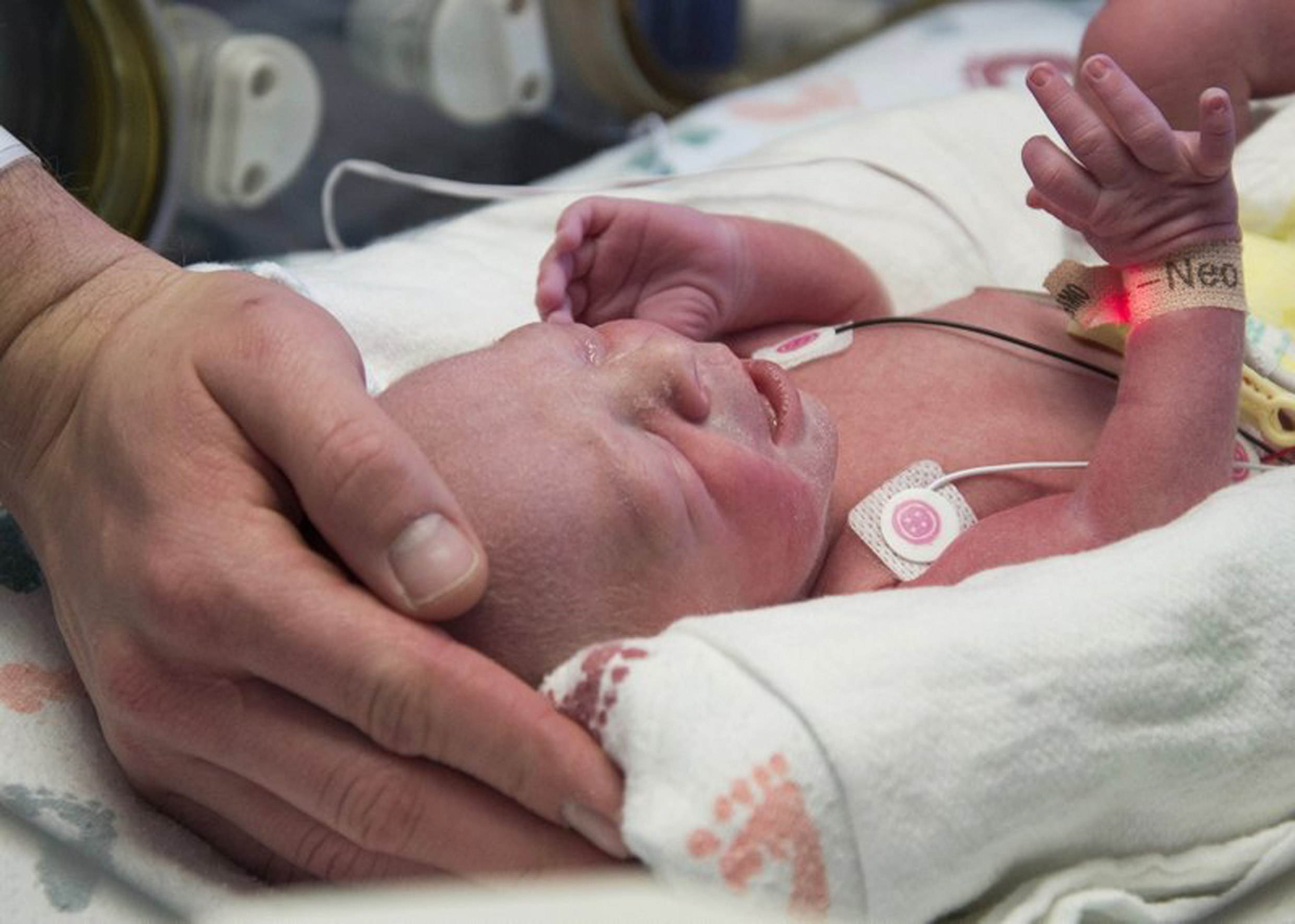 Baby born from uterus transplant.