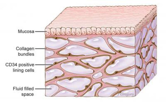 An illustration of the interstitium, is seen here beneath the top layer of skin.