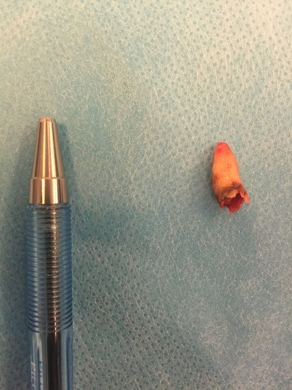 Dent removed from the nostril of the man