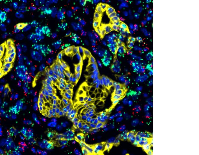 The LIF protein, in green, alongside pancreatic cancer tissue, yellow (Salk Institute/ PA)
