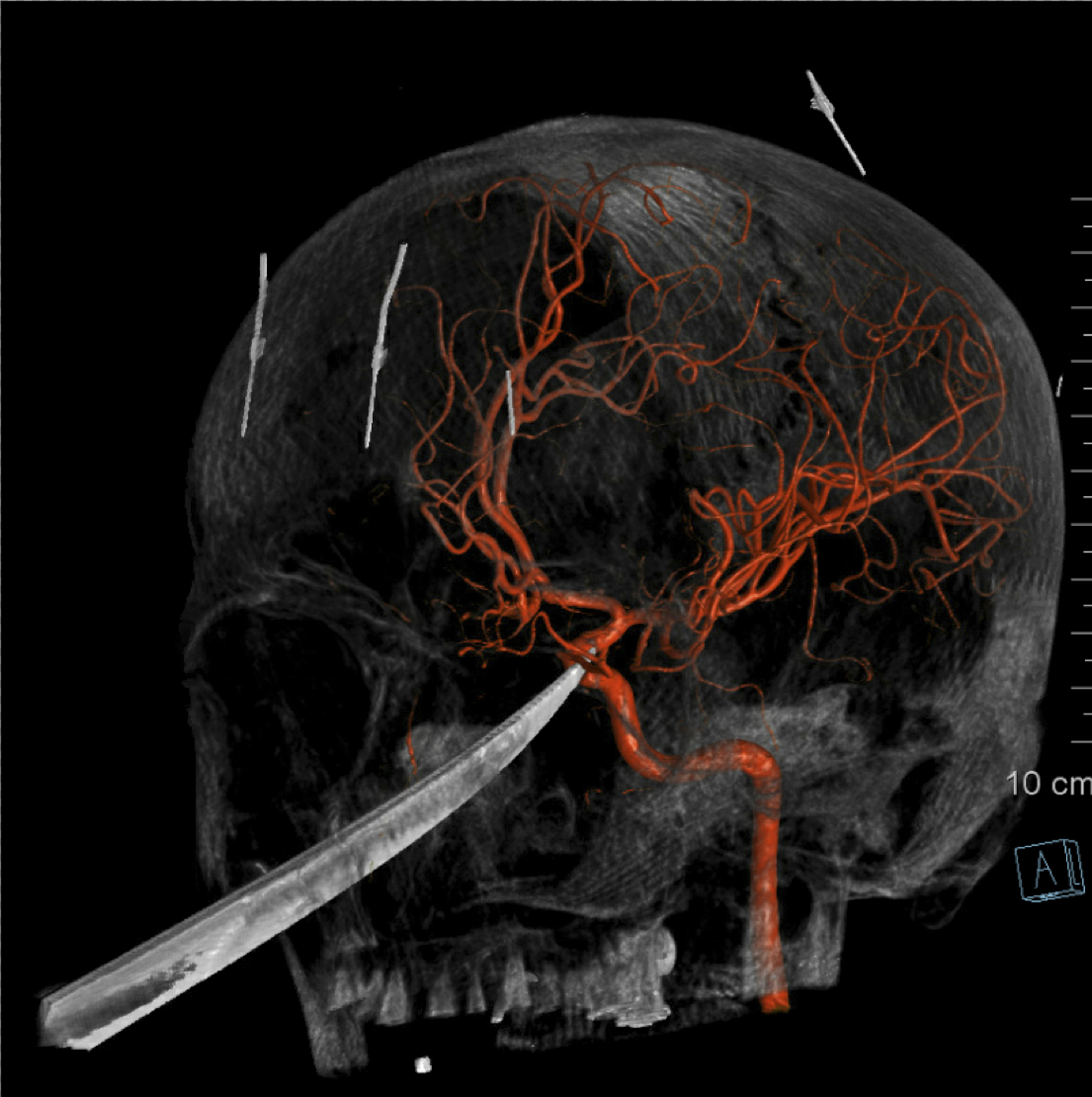 3D computer graphic model made from X-Ray imagery by The University of Kansas Health System shows how a tip of the knife stopped right on and was pressed against the carotid artery