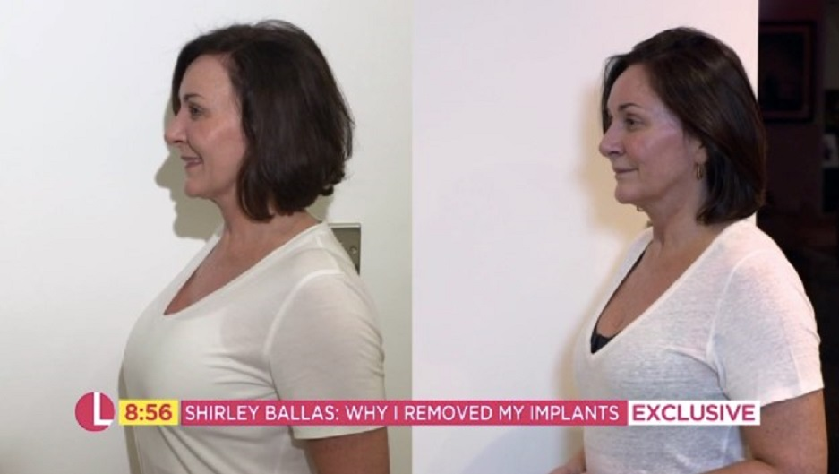 Shirley Ballas before and after the surgery