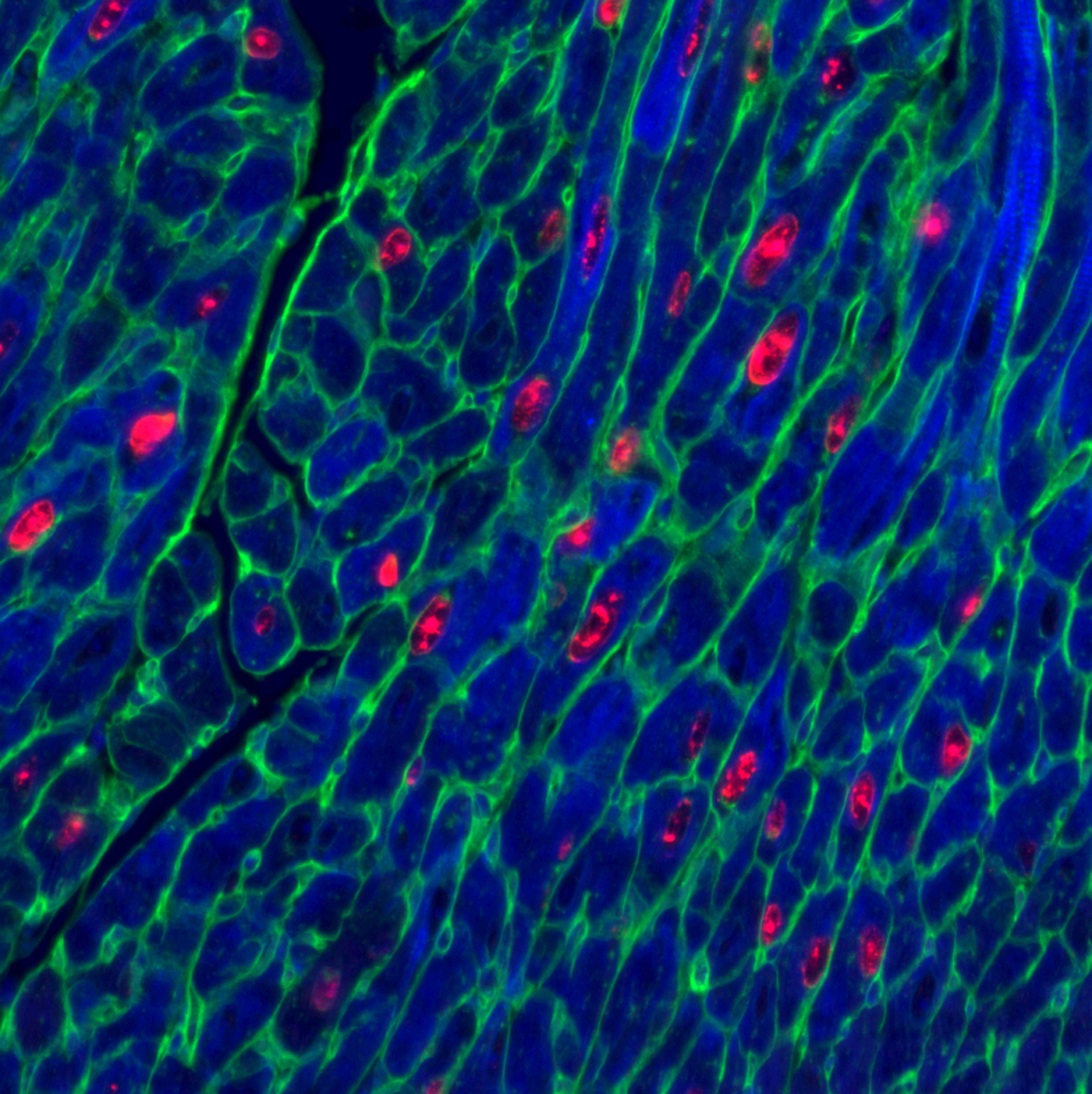 Adult mouse heart muscle cells (blue) after activation of proteins vital for cell replication. Red shows cells replica ting, green marks cell membrane