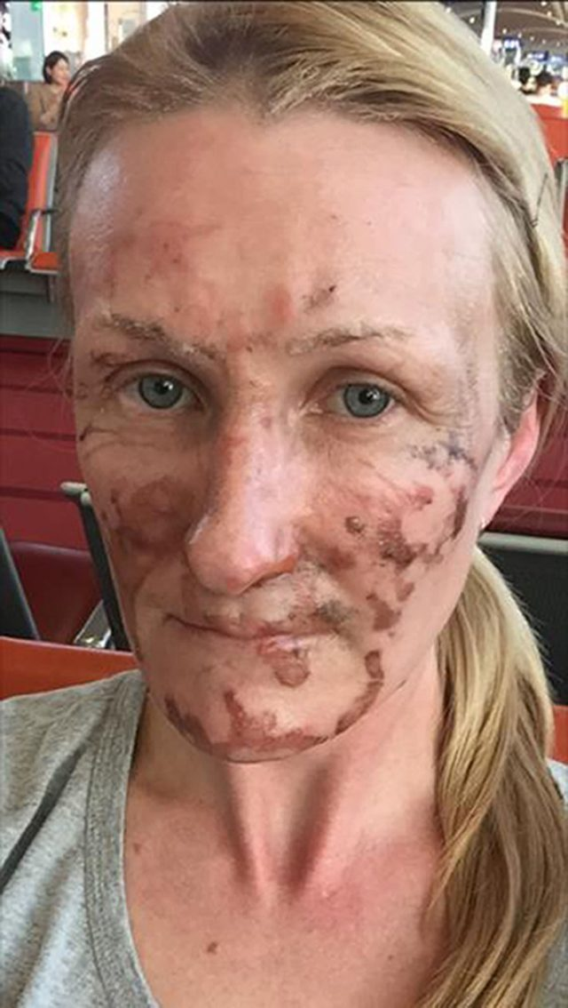 Erica Osbourne after she suffered burns to her face