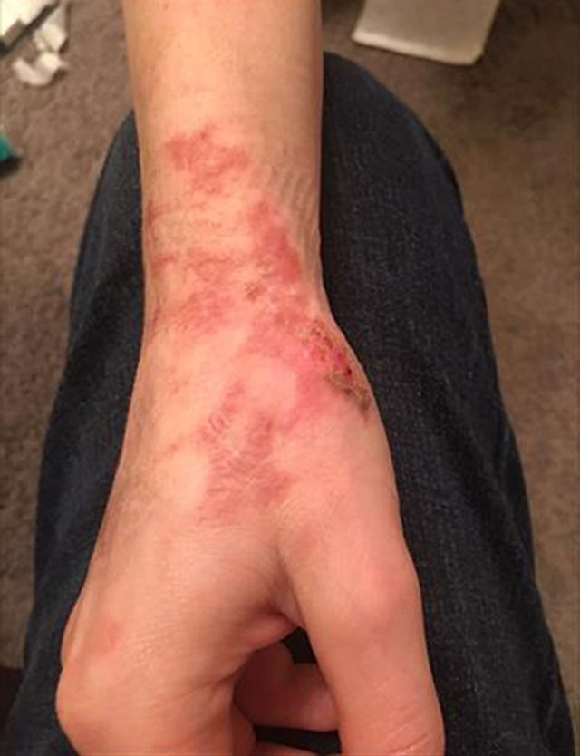 Burns suffered by Erica Osbourne