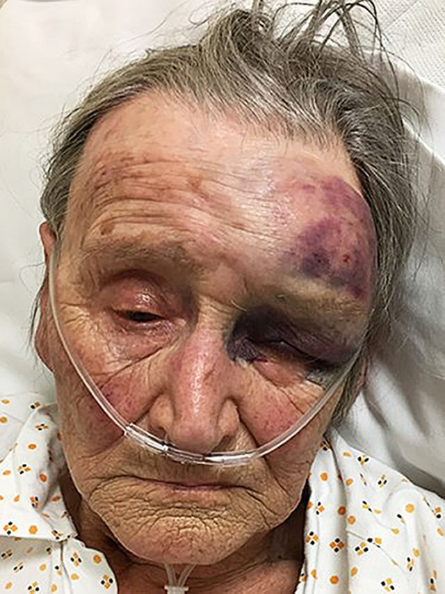 The 88-year-old woman who was assaulted