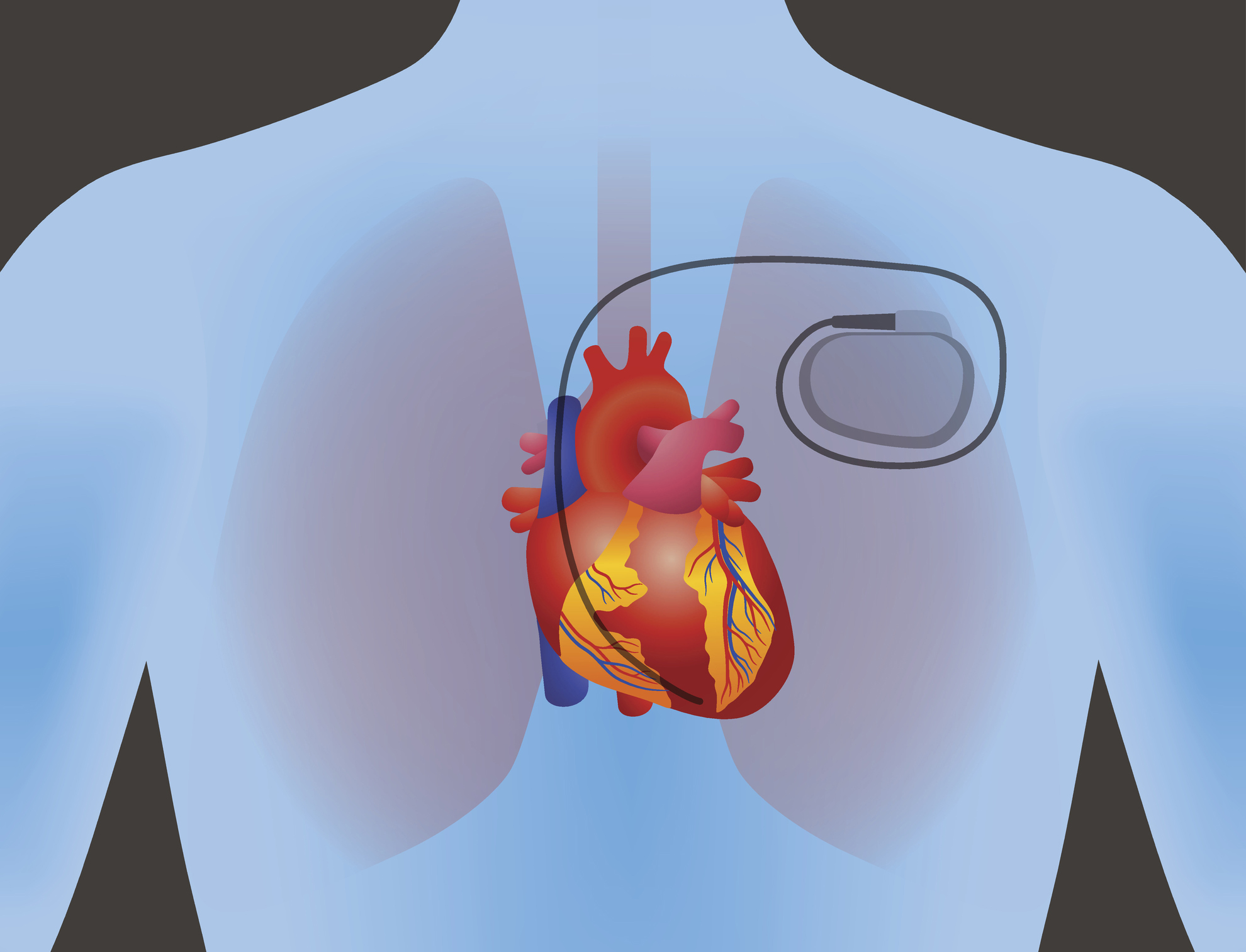 Human heart and pacemaker.