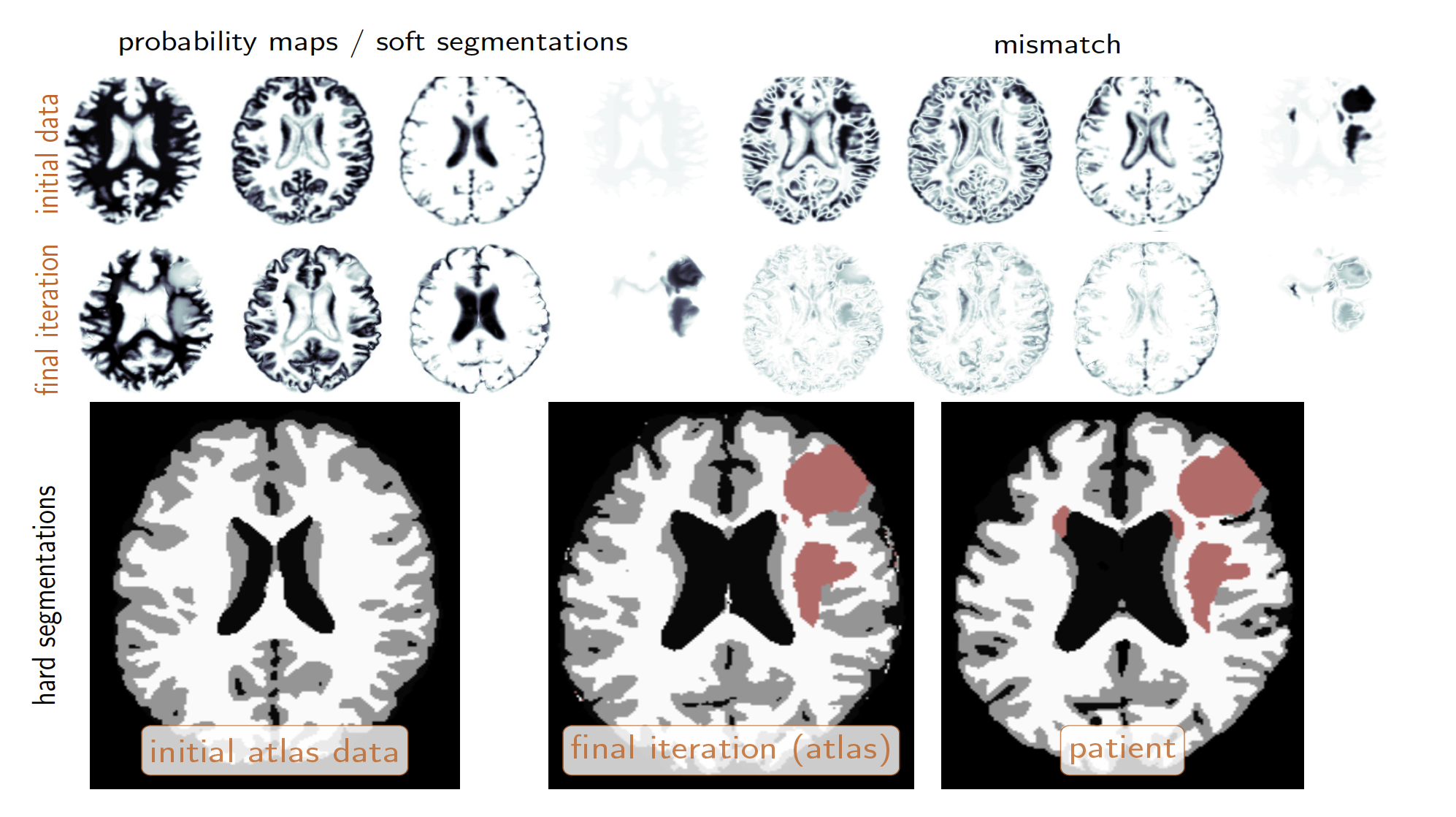 MR brain scans showing different parts of the brain highlighted
