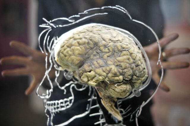 Scans showed reduced activity in some parts of the brain after taking the drug (Ben Birchall/PA