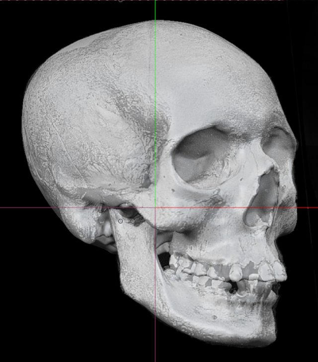 A 3D skull before digital reconstruction of an 18th-century