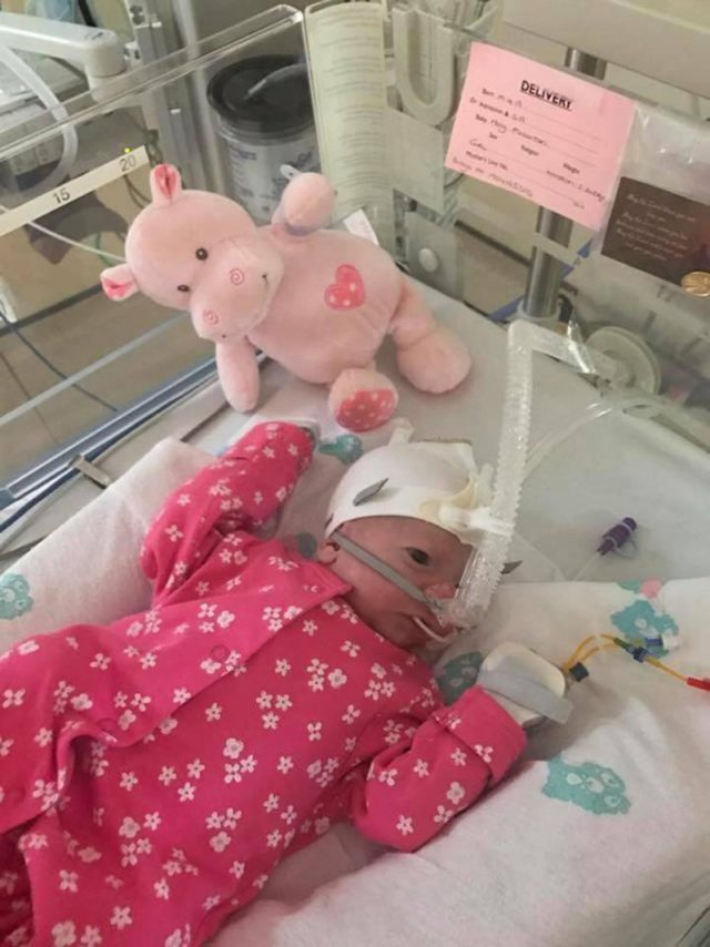 Macy needed urgent surgery shortly after she was born (Collect/PA Real Life)