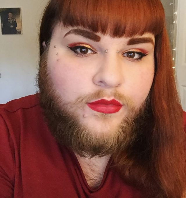 bearded lady love PCOS