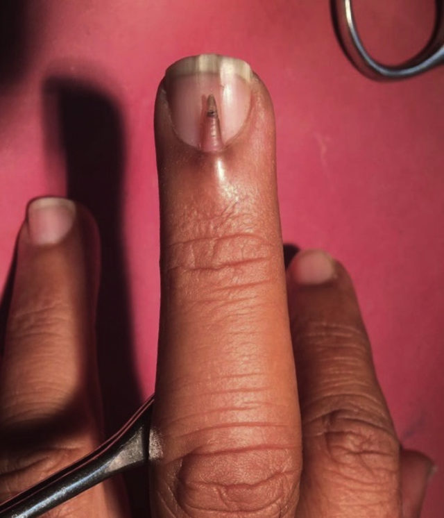 This man had an extra nail growing out of his middle finger - The ...