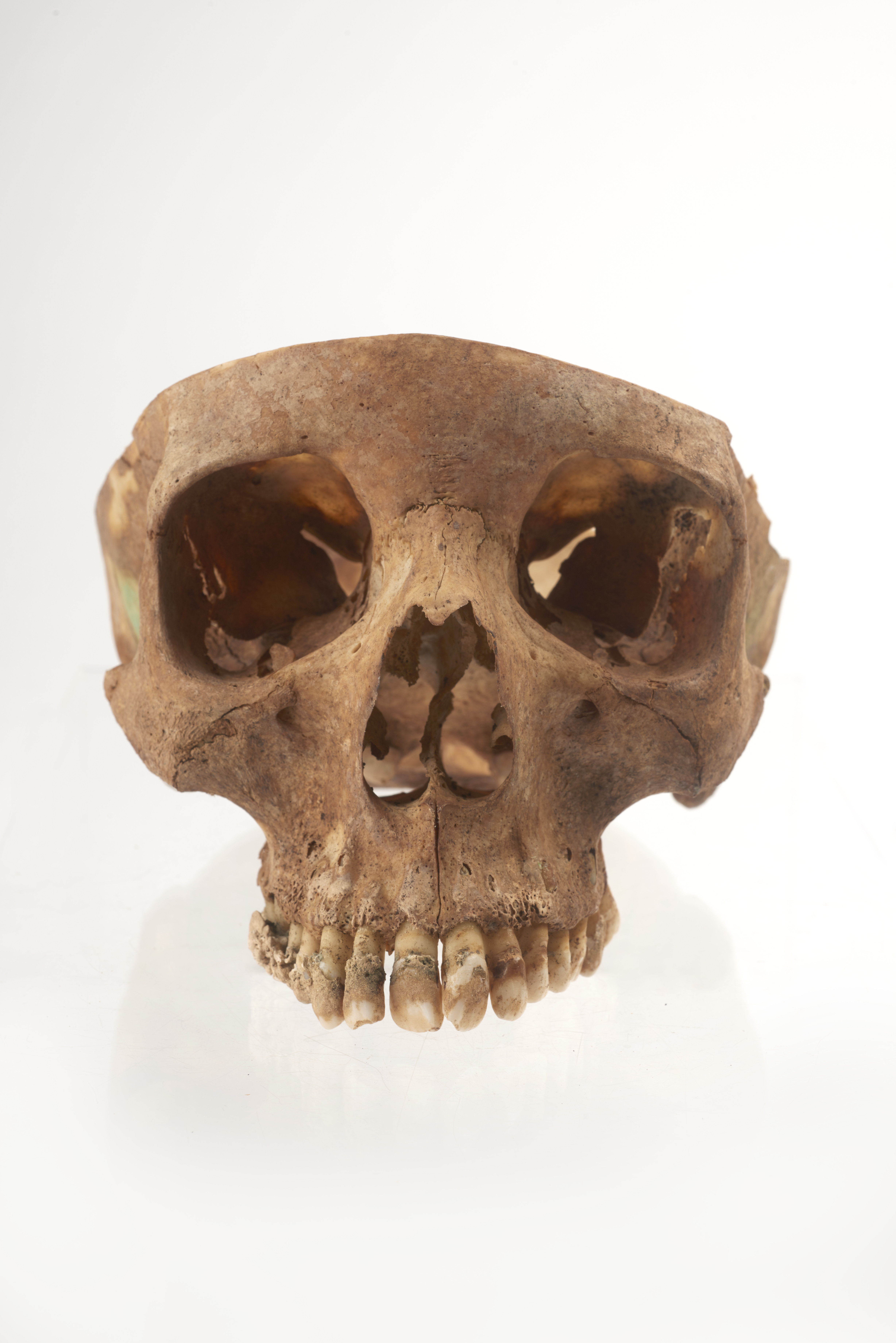 Woman's skull with severe dental plaque (Museum Of London)