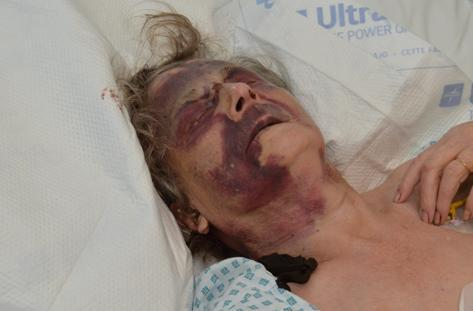 Iris Warner was left seriously injured (Met Police/PA)