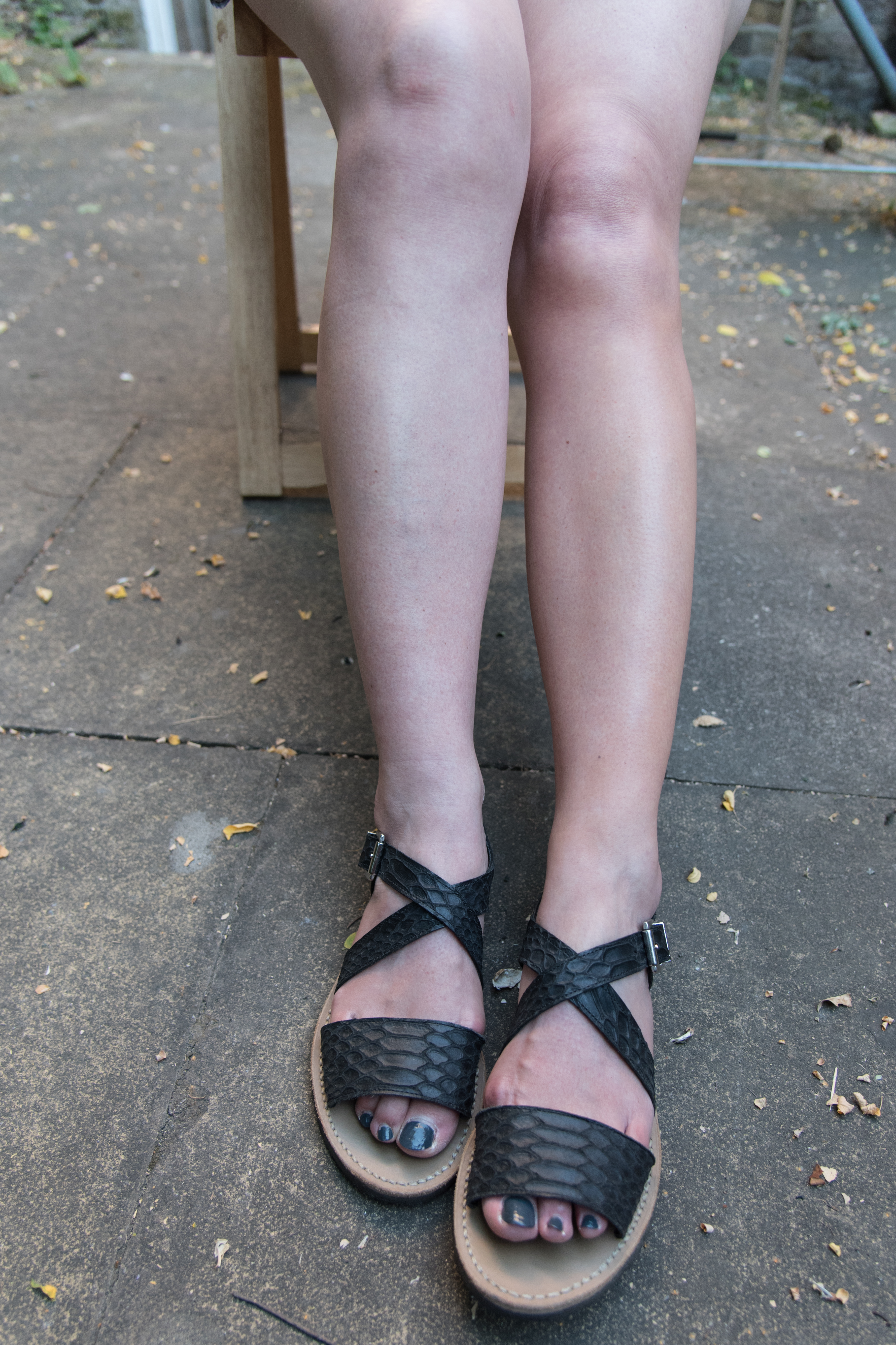 Picture of Sarah's legs, one wearing Alleven, one not