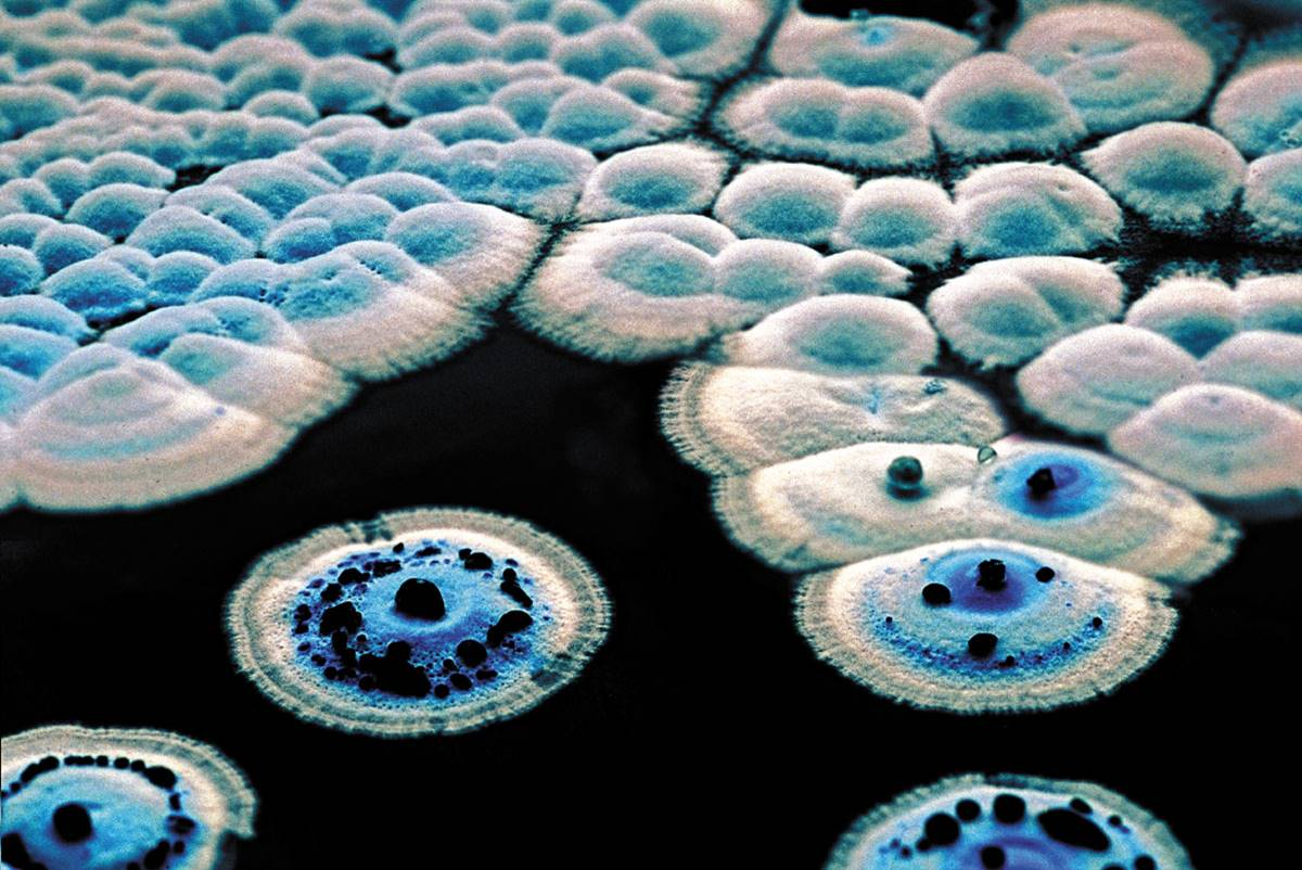 Colonies of Streptomyces coelicolor making the blue antibiotic actinorhodin