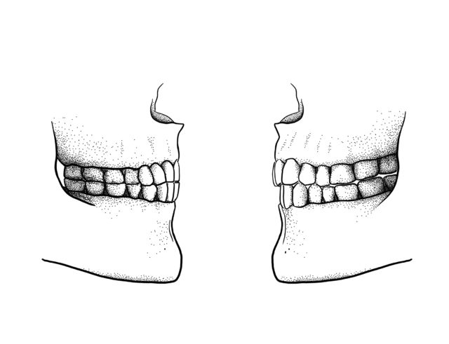 The difference between the edge-to-edge bite (left) and a modern overbite (Scott Moisik/ PA)