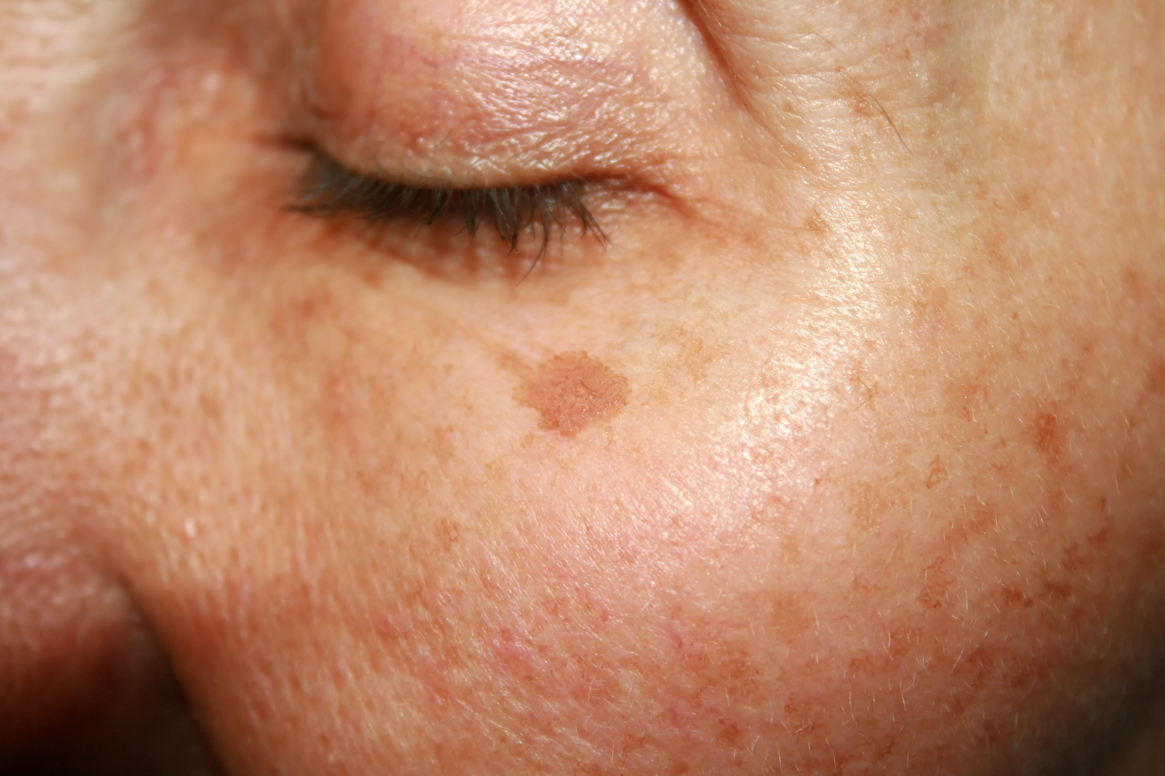 Brown spots under the eye. Pigmentation on the face