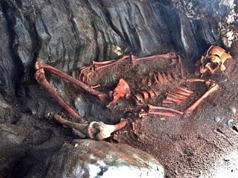 Rosemarkie man's skeleton