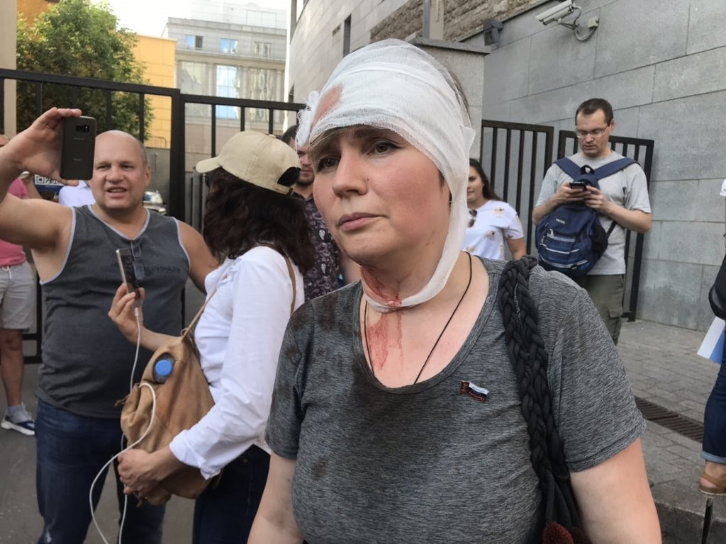 A woman who was struck by a police baton in Moscow