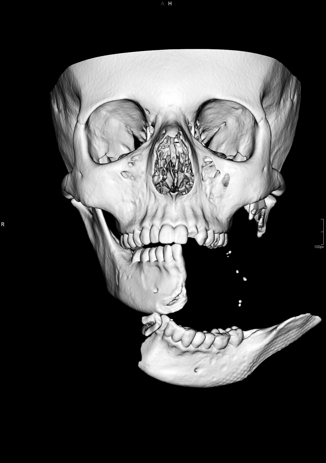 Pre-operation CT Scan 3D Image of injuries to Emily Eccles