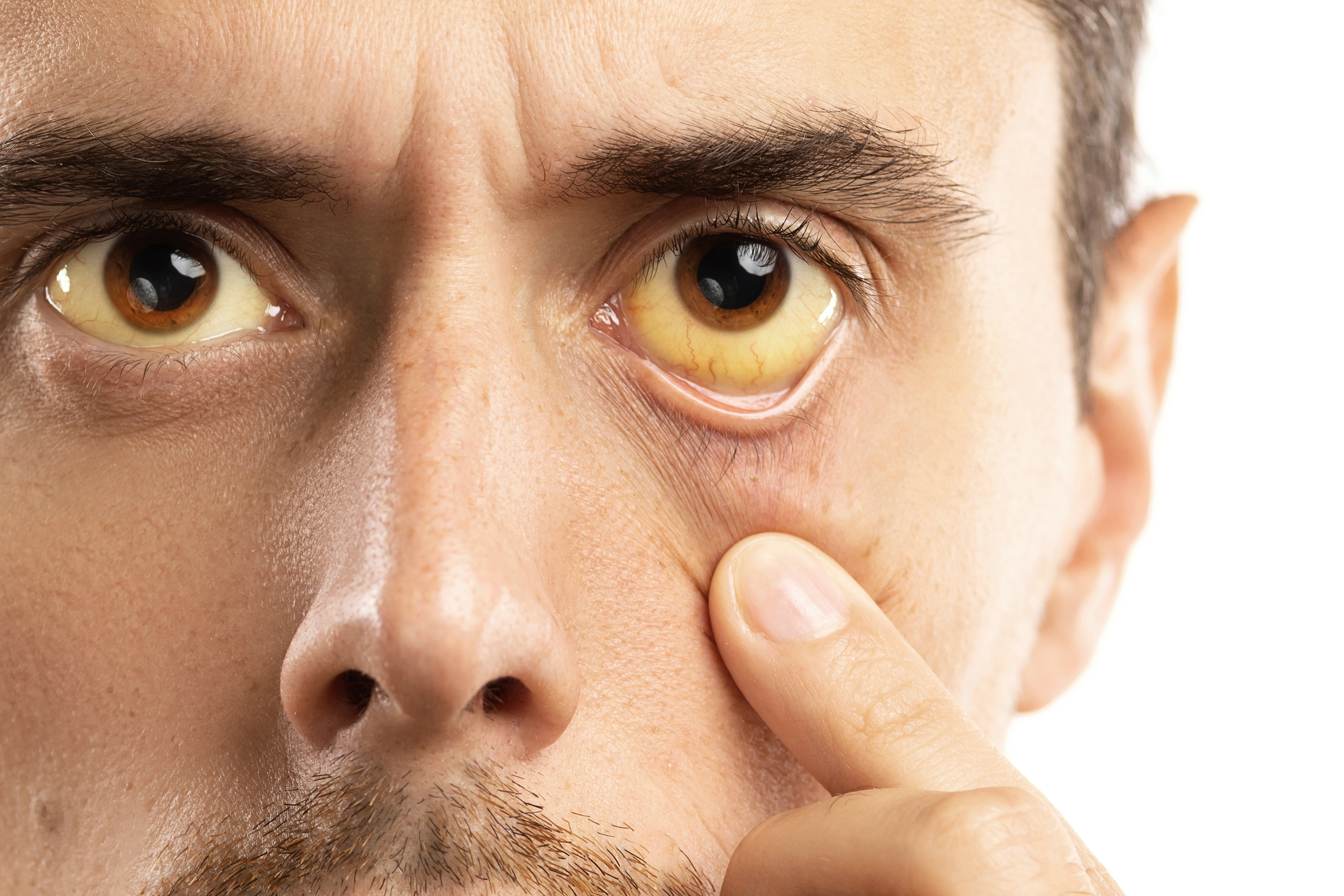 Yellowish eyes is sign of problems with liver, viral infection or other disease
