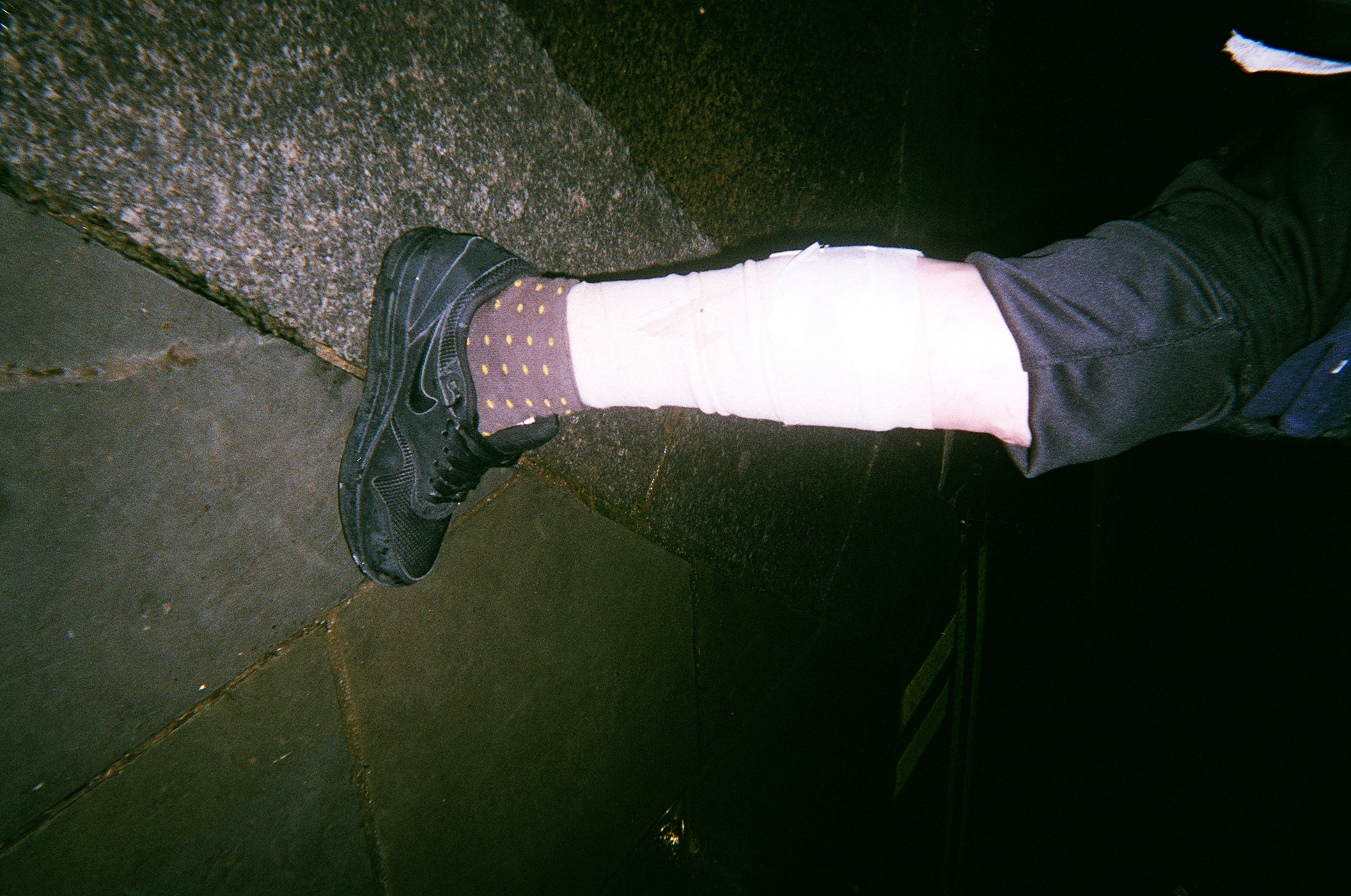 A photograph of a leg, taken by Kelly before she died