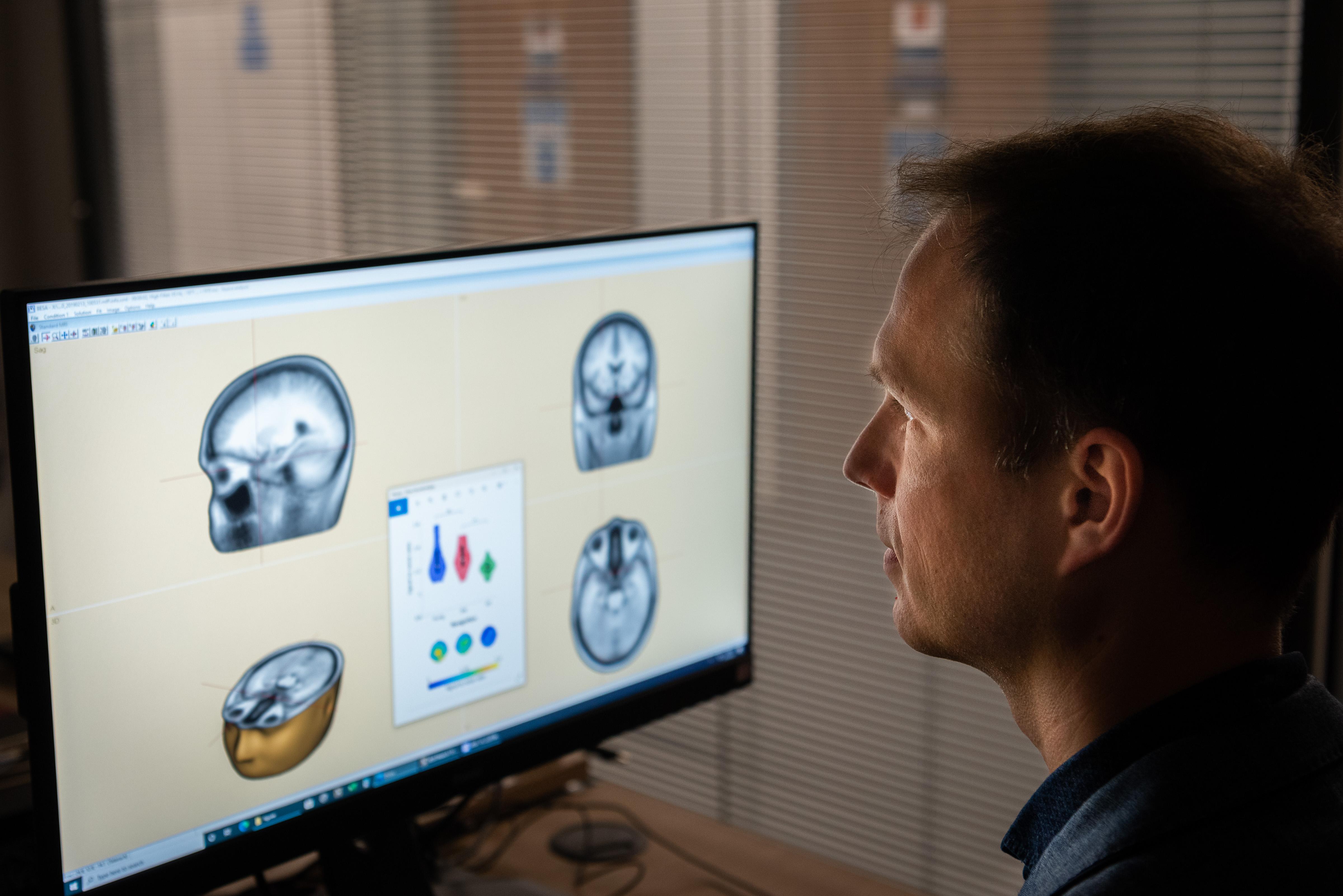 El investigador principal, el Dr. George Stothart, examina los resultados de los escáneres cerebrales (Nic Delves Broughton / University of Bath / PA)
